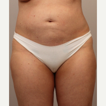35-44 year old woman treated with Liposuction after 3494172