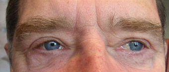 Eyelid surgery after 214837