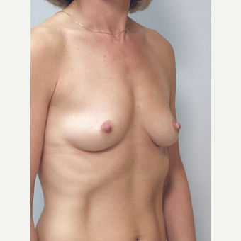 Breast Implants before 3241565