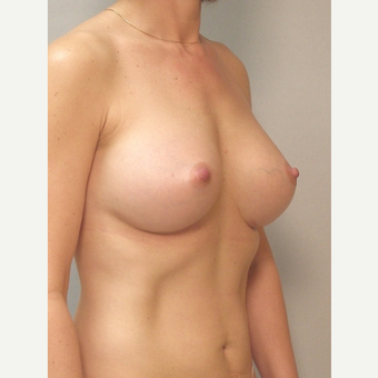 Breast Implants after 3241565
