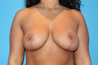 25 yo seeking breast asymmetry correction along with a lift after 1365255