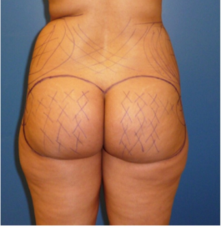 25-34 year old woman treated with Brazilian Butt Lift before 3670725