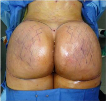 25-34 year old woman treated with Brazilian Butt Lift after 3670725