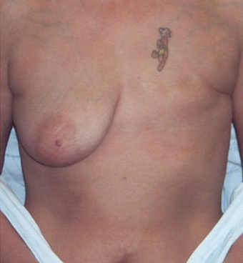 Breast Reconstruction before 78399