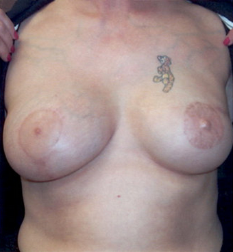 Breast Reconstruction after 78399