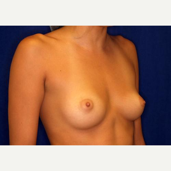 18-24 year old woman treated with Breast Augmentation before 3005795