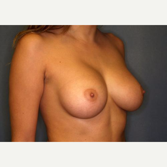 18-24 year old woman treated with Breast Augmentation after 3005795