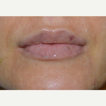 Juvderm Lip Enhancement after 3843958