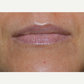 Juvderm Lip Enhancement before 3843958