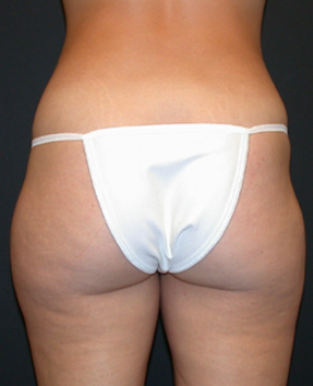 Liposuction 1699671