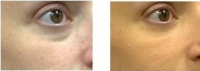 Treatment of Tear Troughs and Under Eye Circles with Restylane Filler before 770956