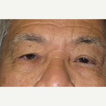 62 year old man treated with Eyelid Surgery before 3026636