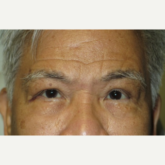 62 year old man treated with Eyelid Surgery after 3026636