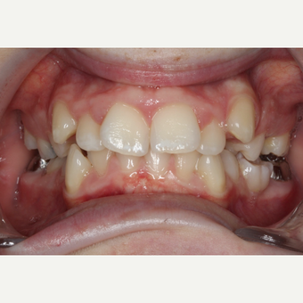 17 or under year old man treated with Braces before 3188549