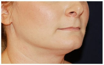 Chin Liposuction before 1256368