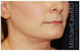Chin Liposuction after 1256368