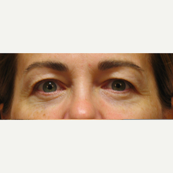 Eyelid Surgery before 3123630