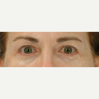 Eyelid Surgery after 3123630