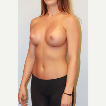 18-24 year old woman treated with Breast Augmentation after 3027211