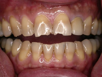Cosmetic bonding of two front teeth