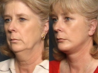 Chin Implant​, Brow Lift, Facelift &​  Lower Eyelid Surgery 338485