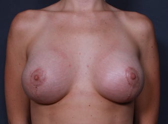 Vertical lift with implants after 3265892