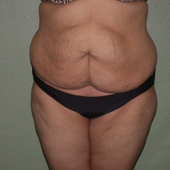 Tummy Tuck before 1592234