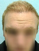 FUE – BHT by SFET Using Head and Body Hair 3,000 graft hairline and scalp after 196025