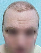 FUE – BHT by SFET Using Head and Body Hair 3,000 graft hairline and scalp before 196025