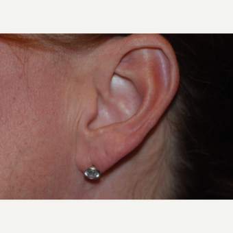 35-44 year old woman treated with Restylane for ear lobe correction. before 3629435