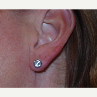35-44 year old woman treated with Restylane for ear lobe correction. after 3629435