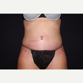 35-44 year old woman treated with Tummy Tuck with Circumferential Liposuction after 3644640