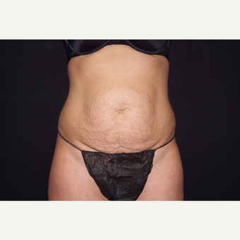 35-44 year old woman treated with Tummy Tuck with Circumferential Liposuction before 3644640