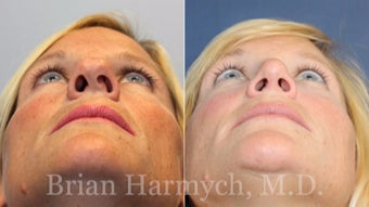 43 year-old female before and 9 months after Rhinoplasty before 3447470