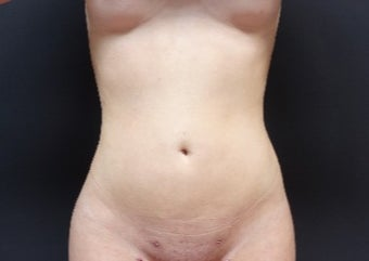 18-24 year old woman treated with Liposculpture after 3315595