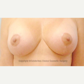45-54 year old woman treated with Breast Lift with Implants after 3453633