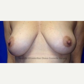 45-54 year old woman treated with Breast Lift with Implants before 3453633