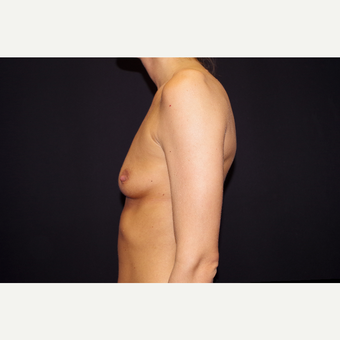 25-34 year old woman treated with Breast Augmentation before 3123727