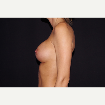 25-34 year old woman treated with Breast Augmentation after 3123727
