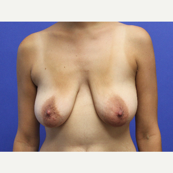 25-34 year old woman treated with Breast Lift with Implants before 3690558