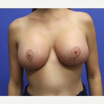 25-34 year old woman treated with Breast Lift with Implants after 3690558