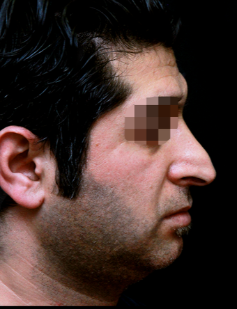 25-34 year old man treated with Rhinoplasty before 3199857