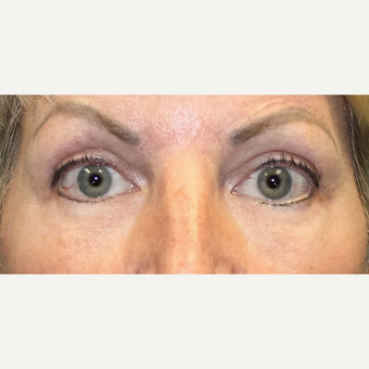 45-54 year old woman treated with Eyelid Surgery after 3286779