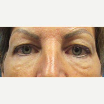 45-54 year old woman treated with Eyelid Surgery before 3286779
