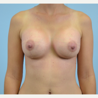 25 year old woman treated with Breast Augmentation after 3432320