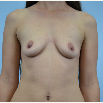 25 year old woman treated with Breast Augmentation before 3432320