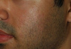 Acne Scar Treatment Before After after 1422900