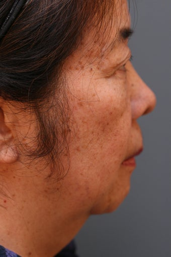 Female Chin Implant  before 887064