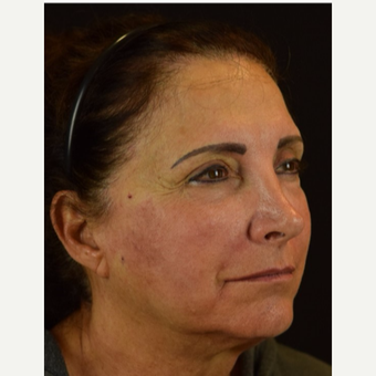 45-54 year old woman treated with Non Surgical Face Lift after 3288779