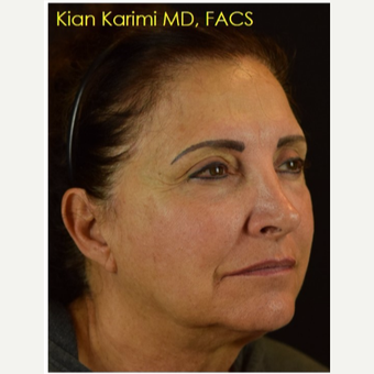 45-54 year old woman treated with Non Surgical Face Lift before 3288779